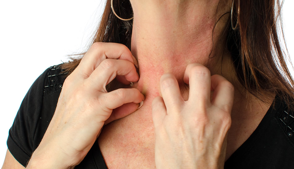 Woman scratching neck because of Eczema